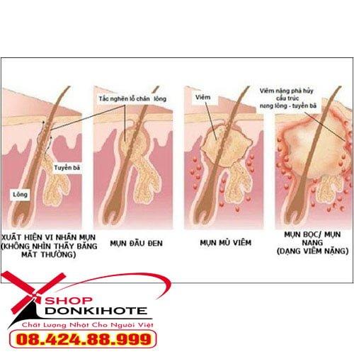Kem trị viêm nang lông chân Kobayashi hộp 20gr Nhật Bản là sản phẩm giúp điều trị viêm nang chân lông một cách triệt để, an toàn