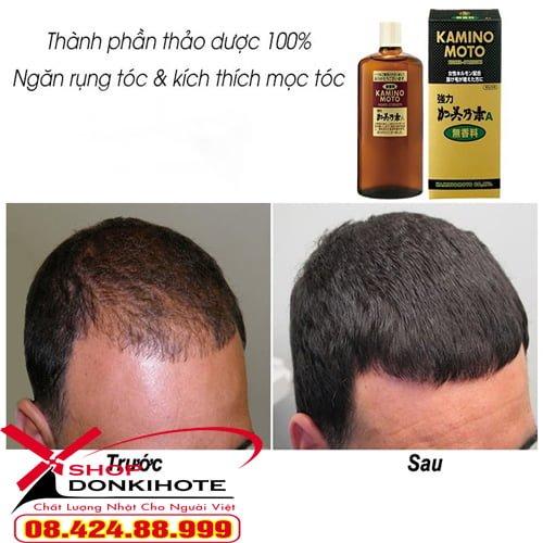 thuốc kích thích mọc tóc kaminomoto Higher Strength Nhật kích thích mọc tóc nhanh gấp 3 lần so với bình thường