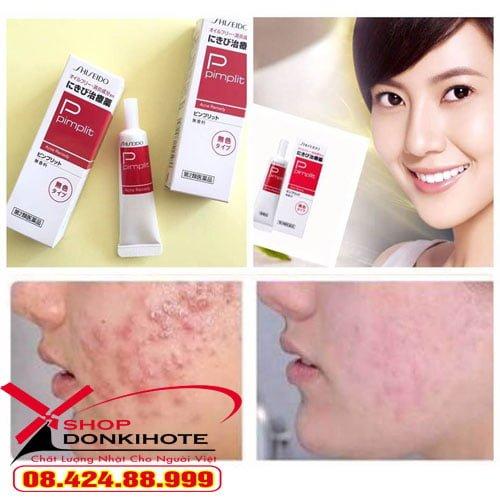 Kem Trị Mụn Shiseido Pimplit 15g đánh bay mụn trong 1 tuần