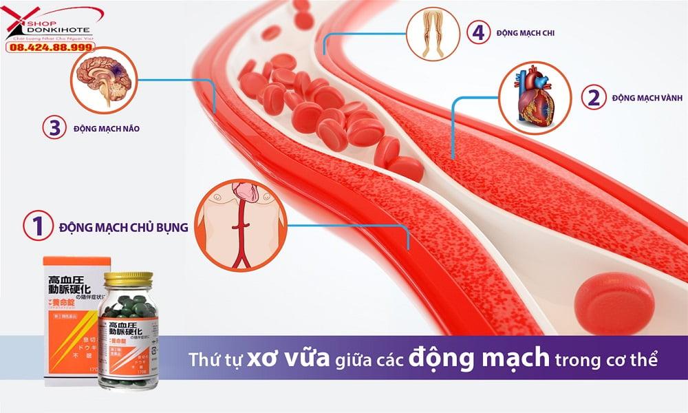 phòng tránh xơ vữa động mạch hiệu quả với viên uống Maya Yomeijyo Nhật Bản